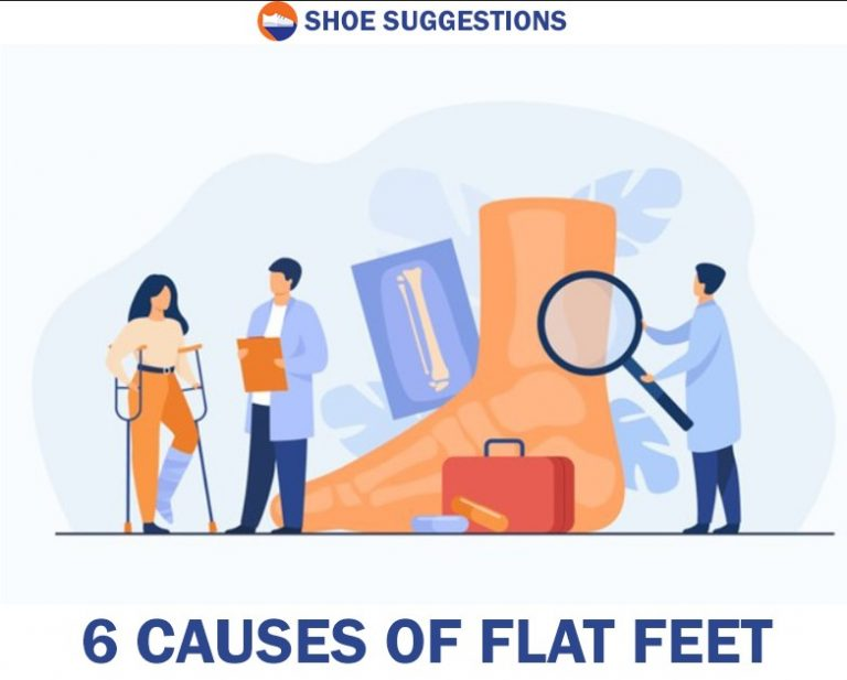 6 Causes of Flat Feet