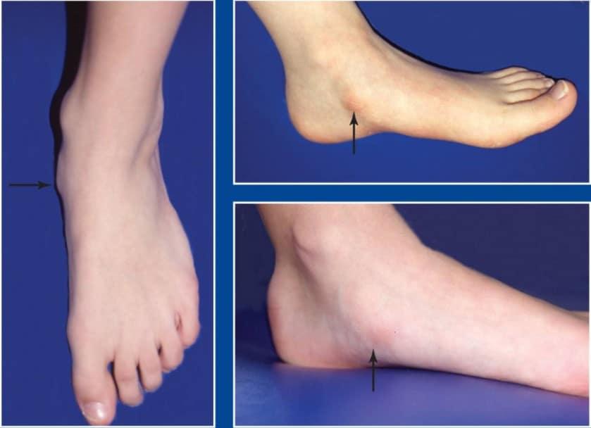 ankle deformity