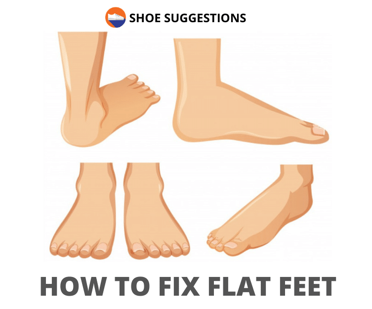 How to fix flat feet