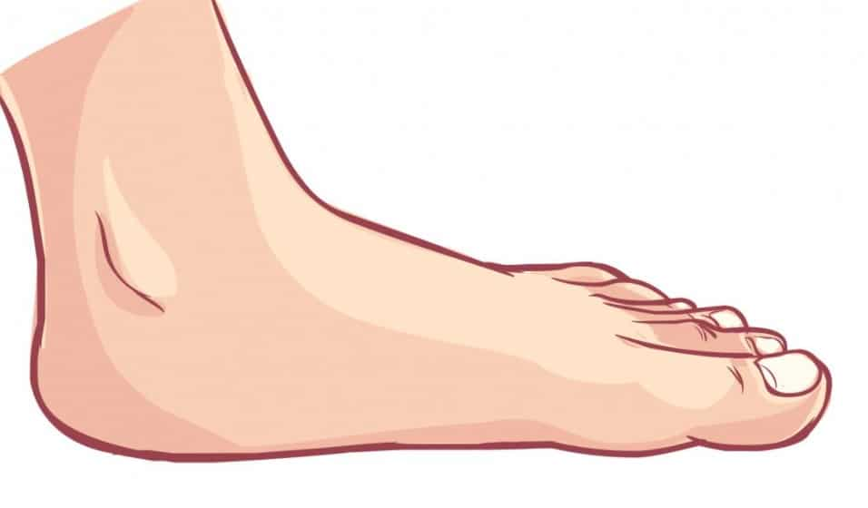 Medical conditions may lead to flat feet